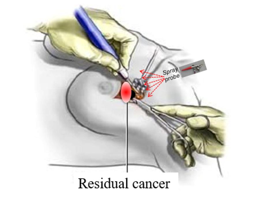 Akrotome-residual cancer